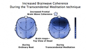 increased-brain-wave-coherence